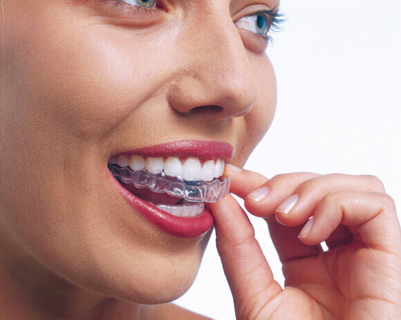 Invisalign at the best Dentist Melbourne