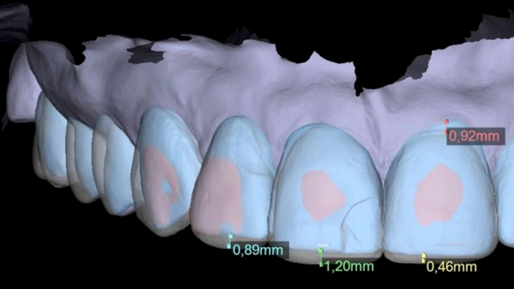Digital Smile Design Render of teeth at Best Dentist Melbourne
