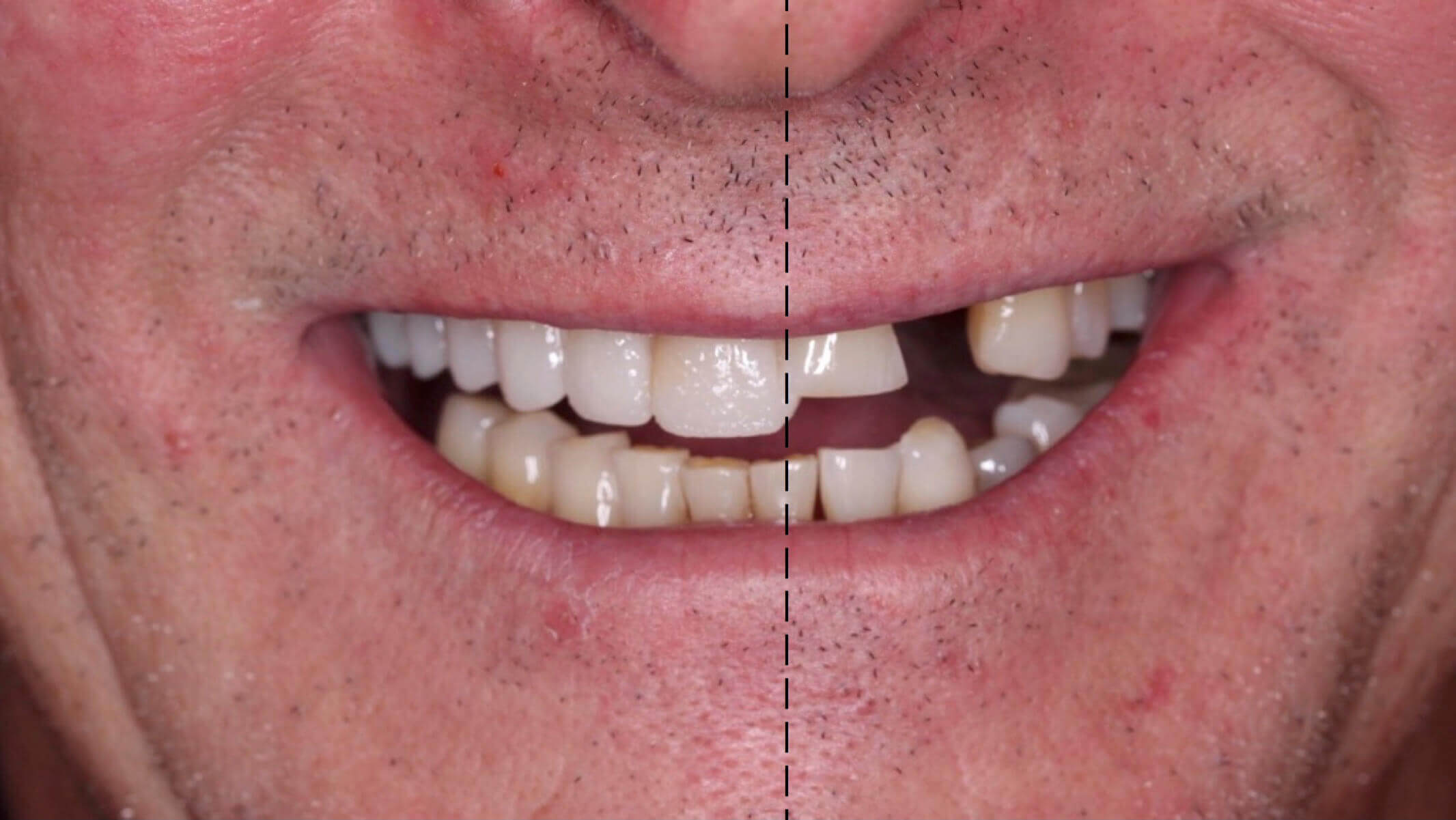 Before and after digital smile design at the melbourne smile centre