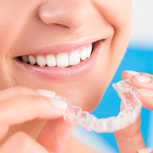 Best Invisalign Tips in Toorak melbourne